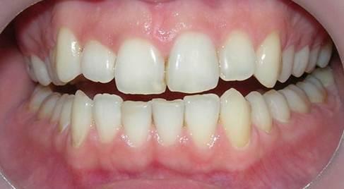 курсы по отбеливанию зубов