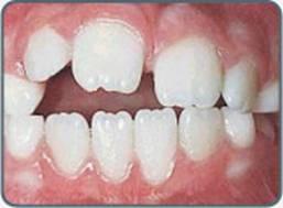 Фото что будет с зубами если ребенок сосет палец