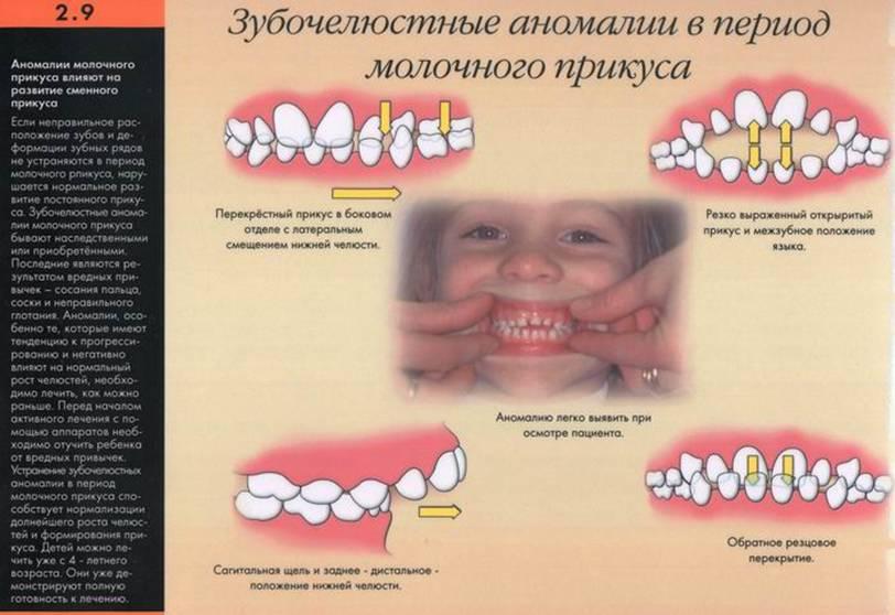 Профилактика прикуса зубов