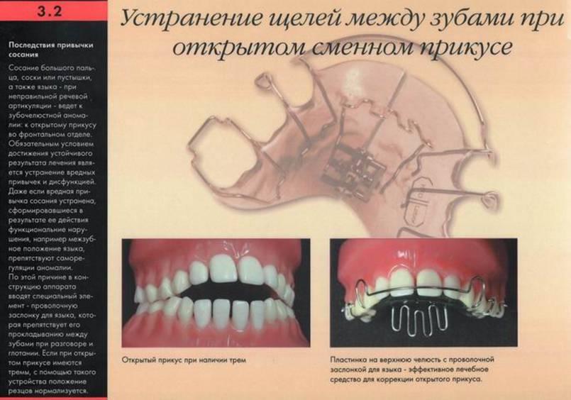 Как из щели между зубами сделать 1
