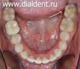 виниры на кривые зубы отзывы