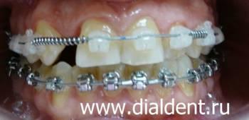 виниры на отсутствующий зуб