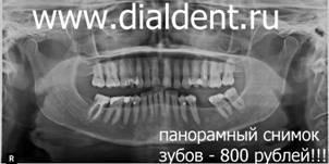 Панорамный снимок зубов багратионовская