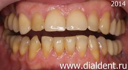 как снять виниры с зубов