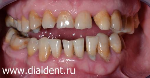 что значит виниры на зубы