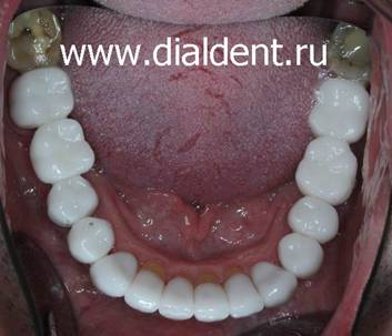 белые зубы виниры