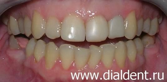 выравнивание отбеливание зубов