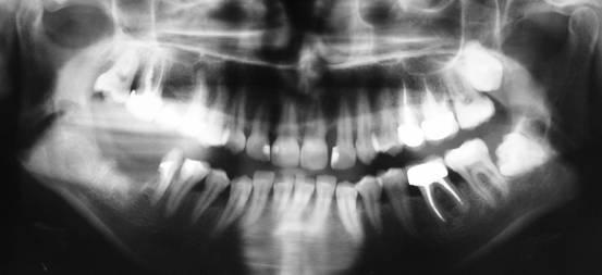 имплантация зубов, имплантация зубов отзывы, стоматология ... неперспективный