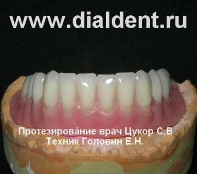 Что делать когда заходятся зубы