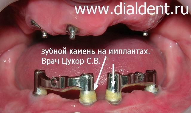 Чем снять налет камня с зубов