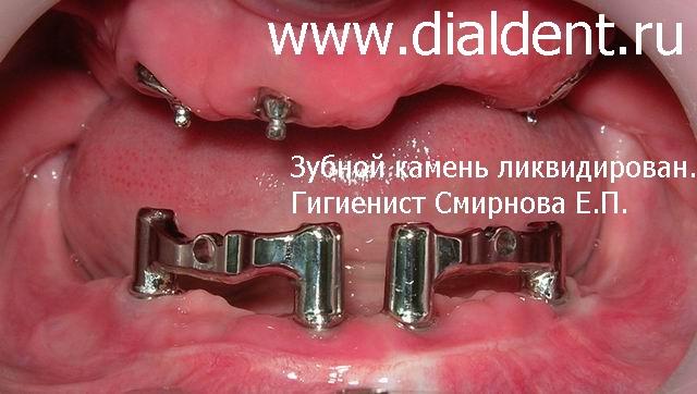 Чем замазать дырку в зубе в домашних условиях