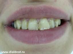 красивые нижние зубы