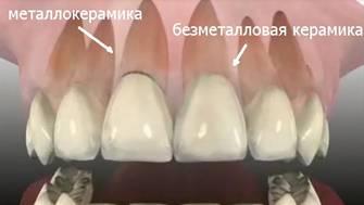 замена металлокерамики на коронки из оксида циркония фото