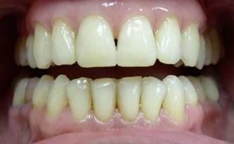 Отбеливание зубов Фото, Изображение Отбеливание зубов.