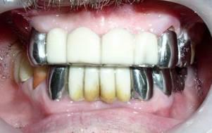 металлические коронки на зубы с белым покрытием фото