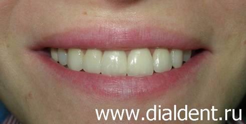 виниры стоимость одного зуба москва
