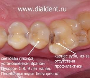 Гарантия на световые пломбы зубов