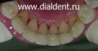 После брекетов зубы могут вернуться