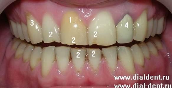 Оголены зубы около десен 112