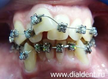 7f000dc54c1b Ситуация в начале исправления прикуса. Брекеты Damon установлены. Результат  исправления прикуса и выравнивания зубов ...