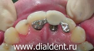 вставные зубы до и после фото
