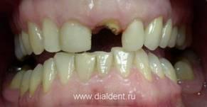 Лечение зуба с удаленным нервом