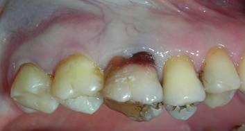 шатавшийся зуб изменил цвет