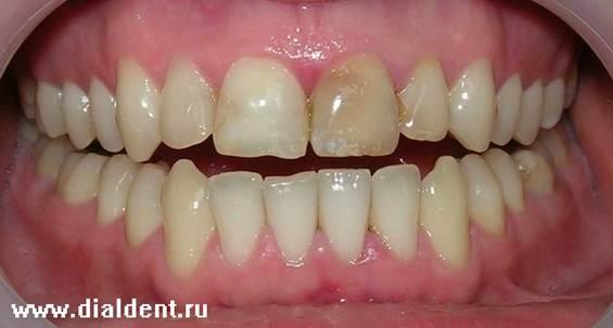 Что делать если потемнели зубы