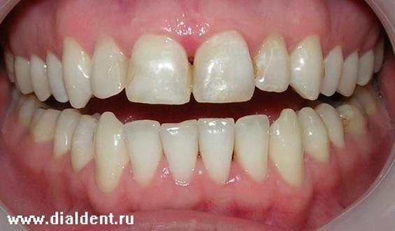 В данном случае было применено сложное отбеливание зубов сочетание