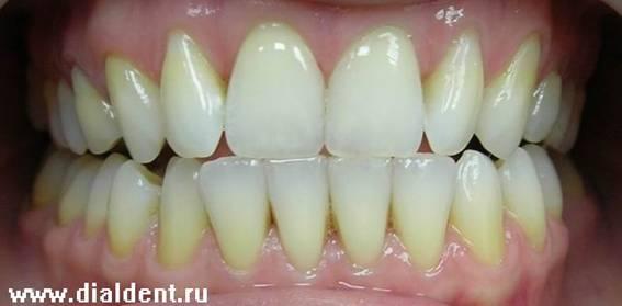 самое лучшее отбеливание зубов у стоматолога