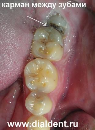Сделав панорамный снимок зубов