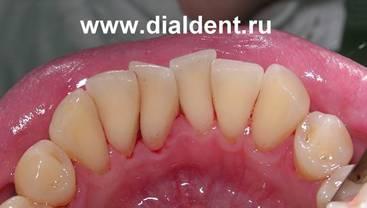Дырка в зубе 7