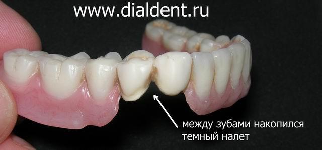 Обработка зубных протезов в домашних условиях