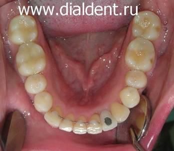 Что мешает зубу изнутри
