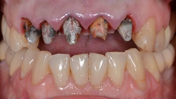 Чтобы не воняли зубы под коронкой