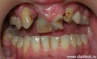фото зубы на нёбе