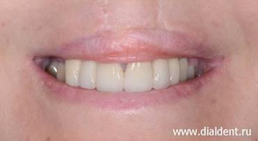 Расщелина на верхних зубах
