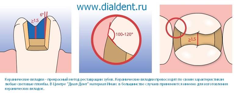 виниры на зубы материал