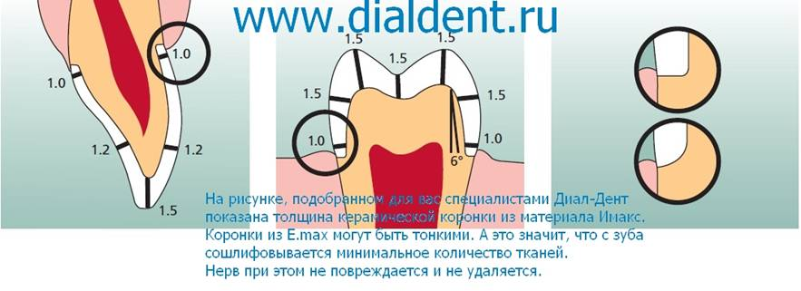 зубной техник виниры